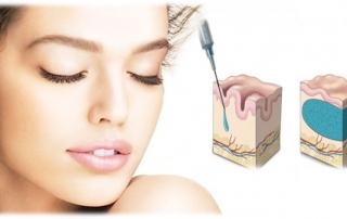 Acido ialuronico: crema per viso e labbra