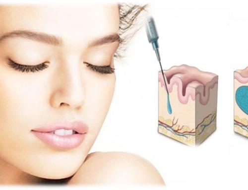 Acido ialuronico per uso cosmetico e antirughe